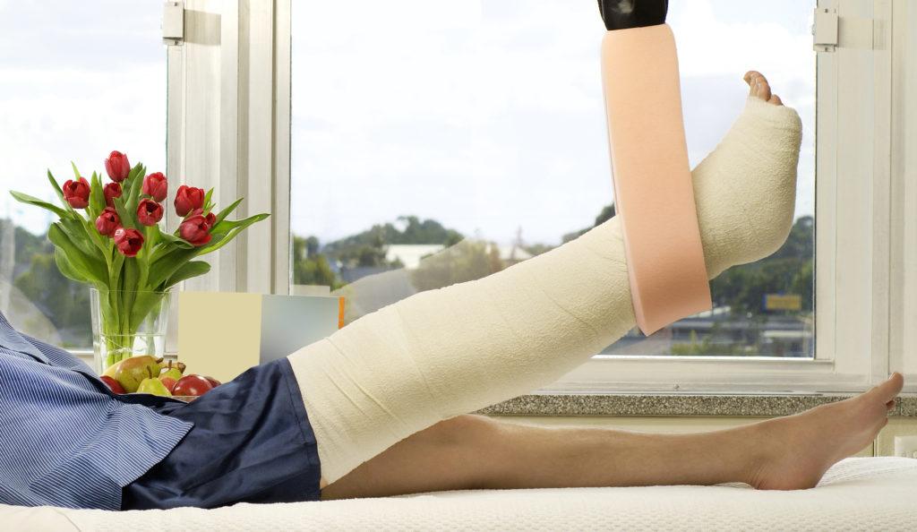 Broken Leg in bed
